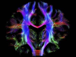 Les différents états du cerveau